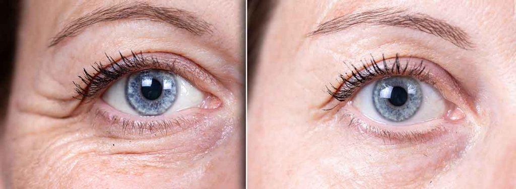 Augenringe-Creme
