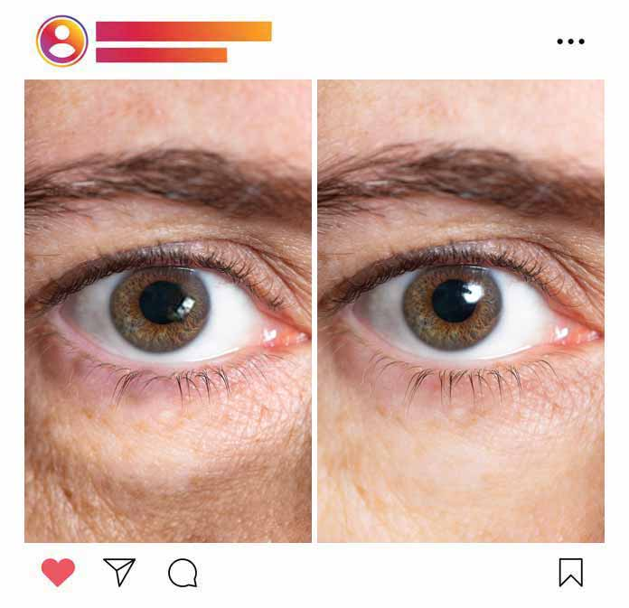 Butile-Augenringe-Creme