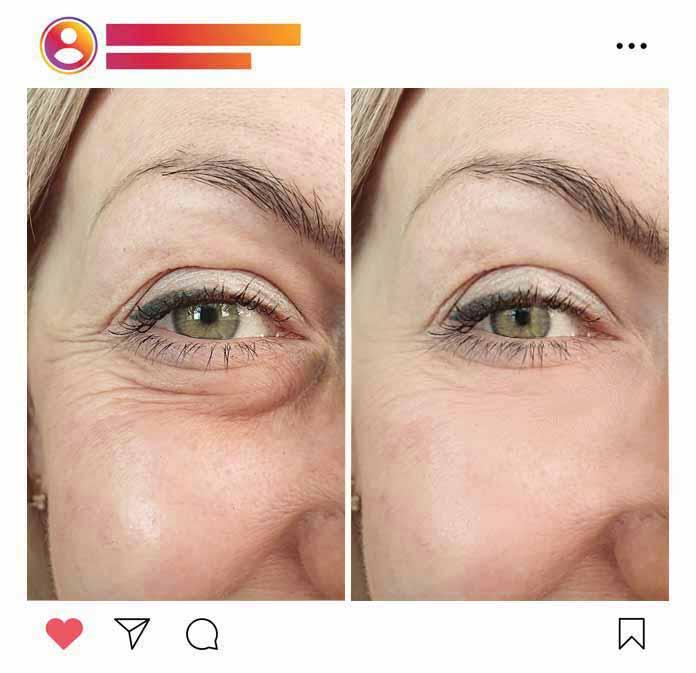 Creme-gegen-Augenringe